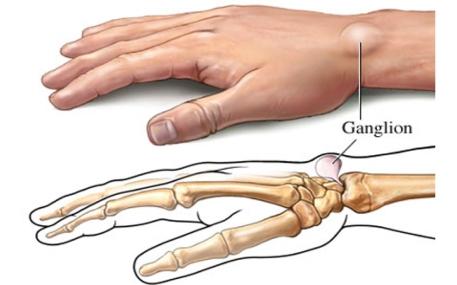 Adib Yazid Ganglion Cyst Treatment
