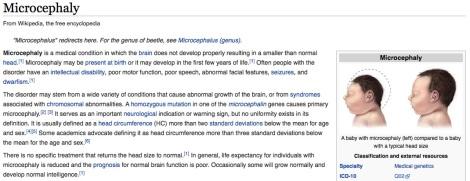 Microcephaly.jpg